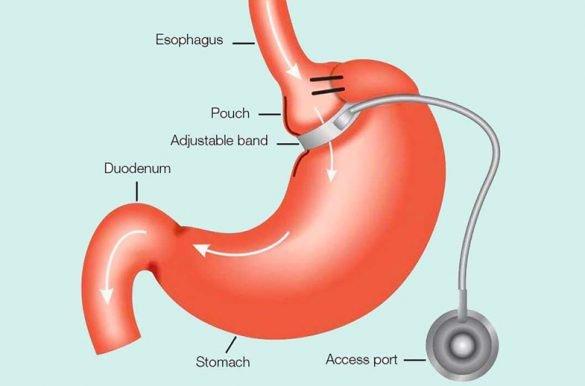 posicionamento-de-la-banda-gástrica-laparoscópica