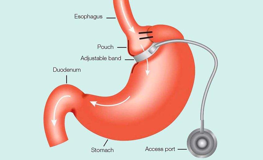 laparoscopic-gastric-band