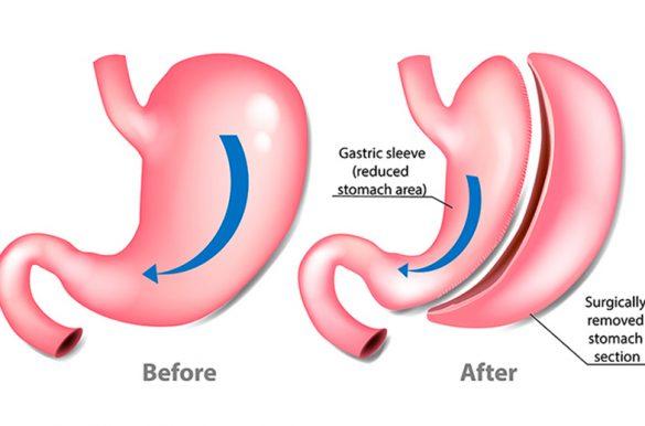gastrectomía-en-manga-laparoscópica