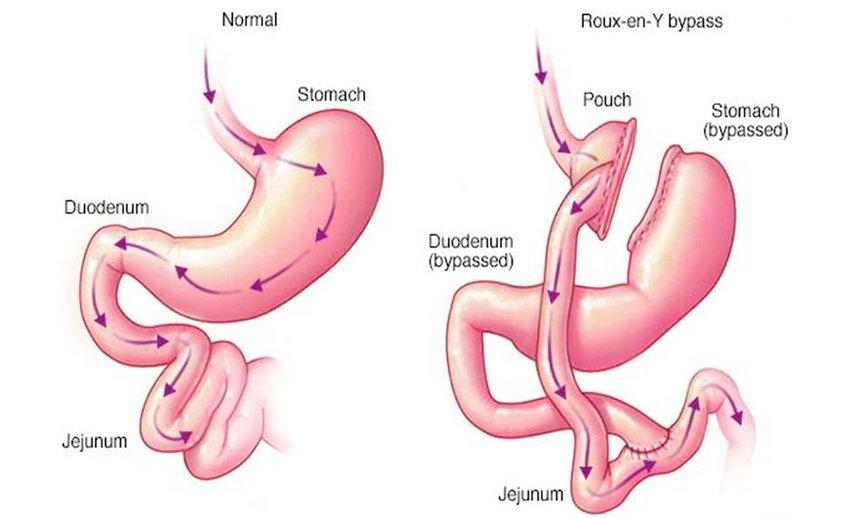 bypass-gástrico-laparoscópico-roux-en-y