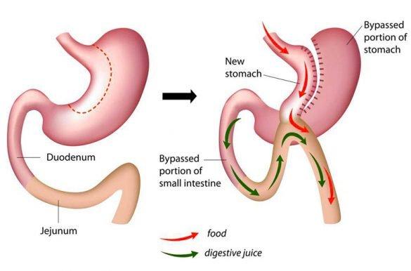 laparoscopic-mini-gastric-bypass