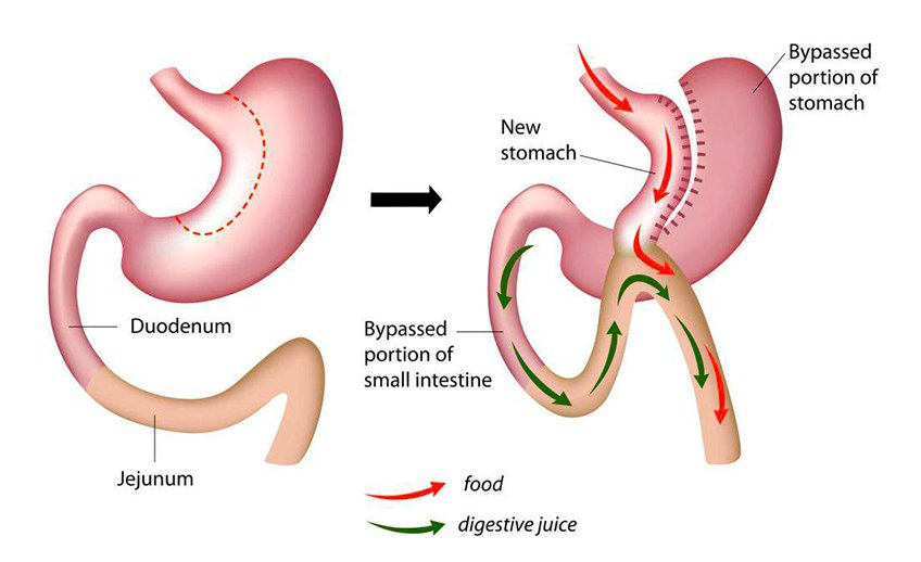 mini-bypass-gastrico-laparoscopico